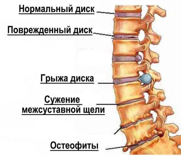 sheyniy_osteohondroz5
